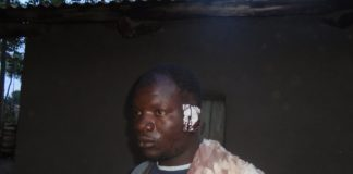 Kamalila Achwanya, who lost his ear after a client bit him