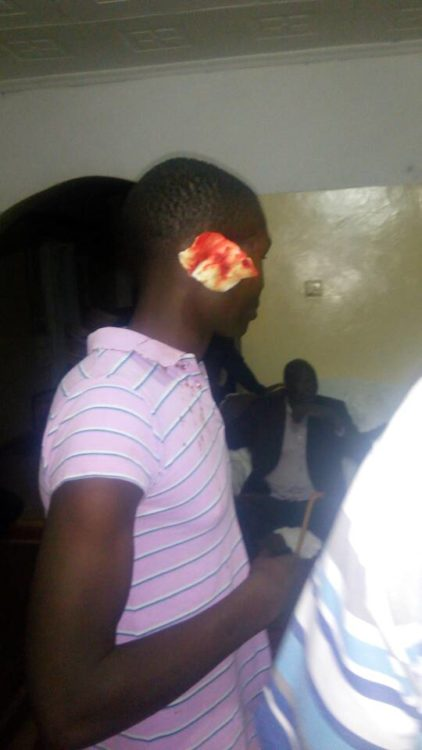 One of the supporters who was inured in the skirmish between supporters of Endebess MP Robert Pukose and Alwin Sasia