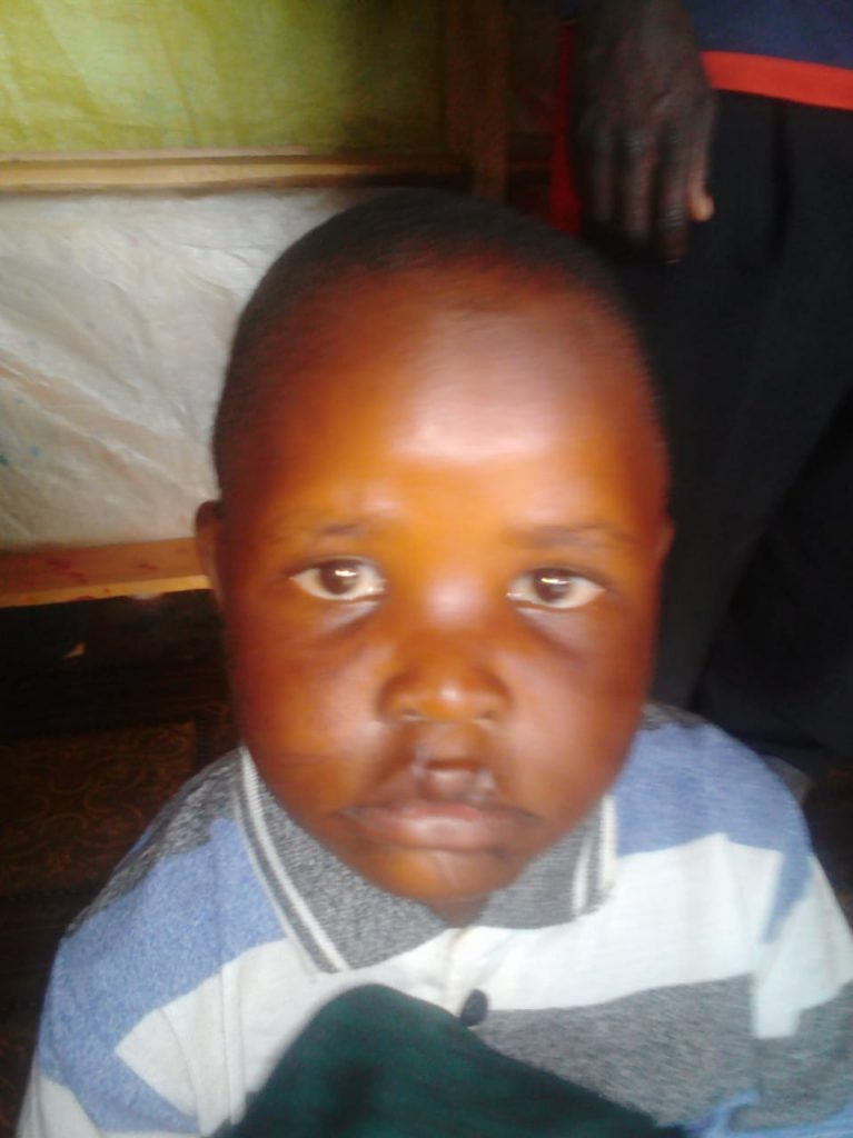 One child showing some of the injuries caused by their father